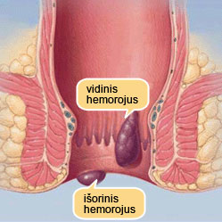 Išorinis hemorojus